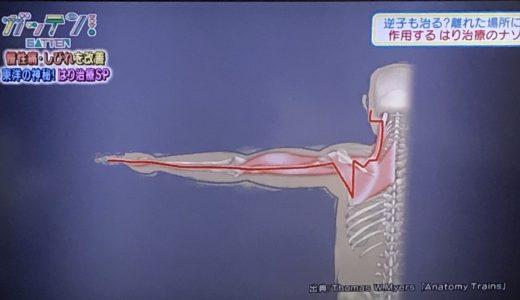 【内容まとめ】ガッテン慢性痛しびれが改善!逆子も治る!?東洋の神秘「はり治療」SP